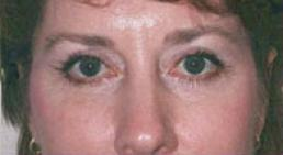 upper-eyelid-lift-peninsula